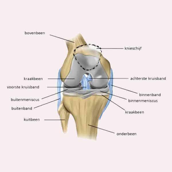 Artrose is vaak de boosdoener bij klachten aan knieën en heupen